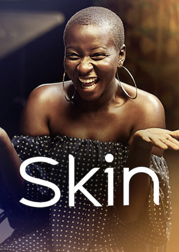 """Skin"" movie review"