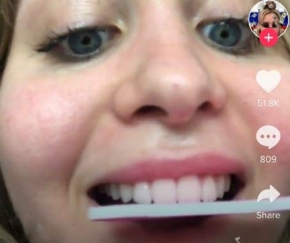 TikToks trend of DIY dentistry involves shaving teeth with a nail file